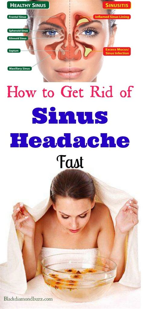 What Is The Best Treatment For Headache