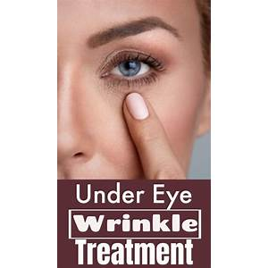 Wrinkle treatment get rid of under eye wrinkles by overnight wrinkle cures promo