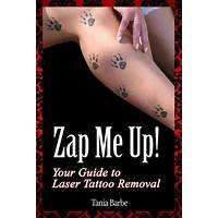 Zap me up! your guide to laser tattoo removal that works